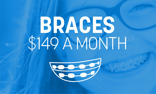 $150 a month braces, special offers