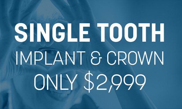single tooth implant and crown, special offers