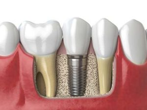 diagram of an implanted tooth, dental implants services