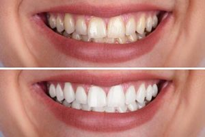 two smiles compared one on top of the other, teeth whitening services conroe tx