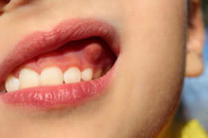 an abscess in a patient mouth dental abscess treatment conroe tx
