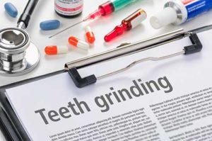 medical paper on teeth grinding